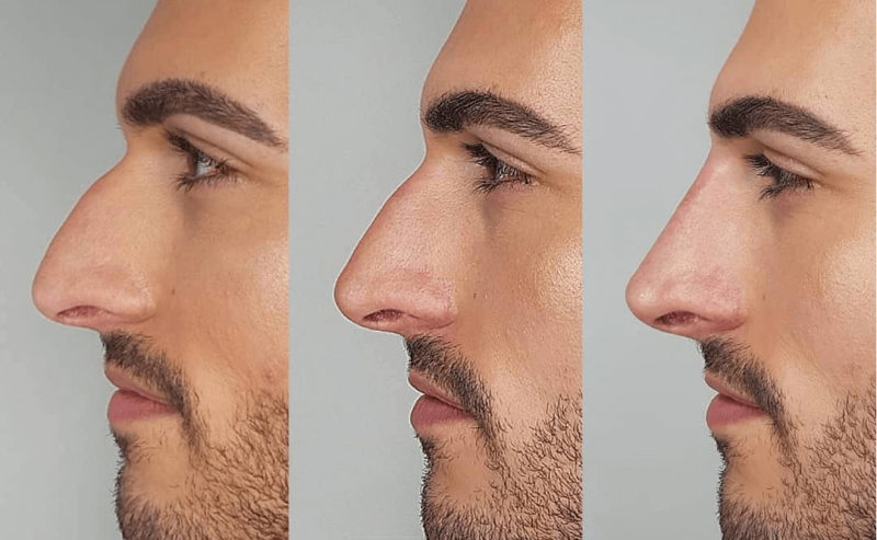 Non surgical nose job by Dr Ayad Harb