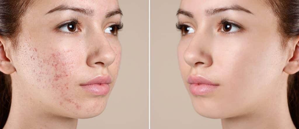 acne and acne scarring treatment omniya knightsbridge london