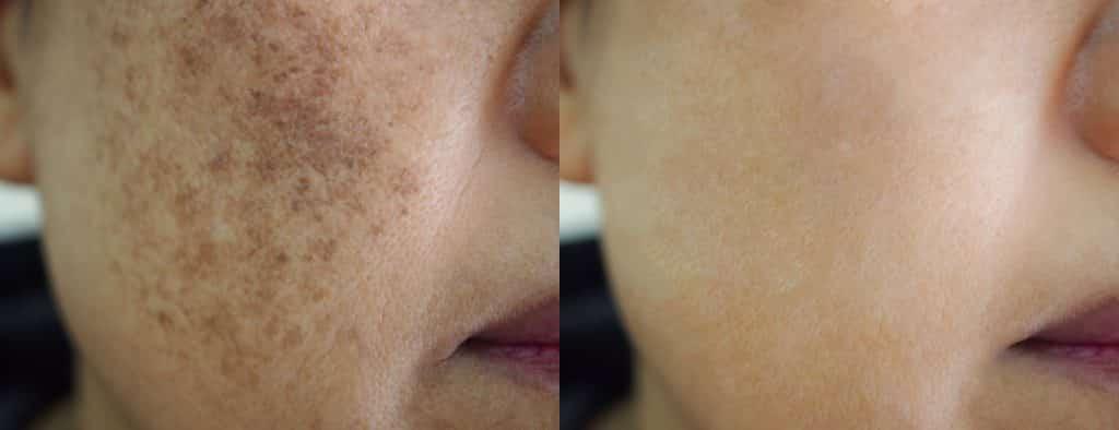 pigmentation ipl microneedling prp peels