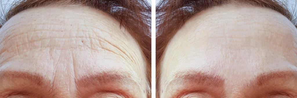 wrinkles and fine lines botox hifu rf