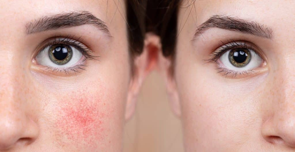 rosacea treatments dermatology led ipl