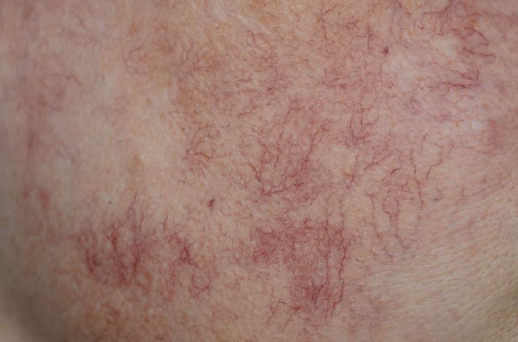 thread vein laser ipl sterex electrolysis