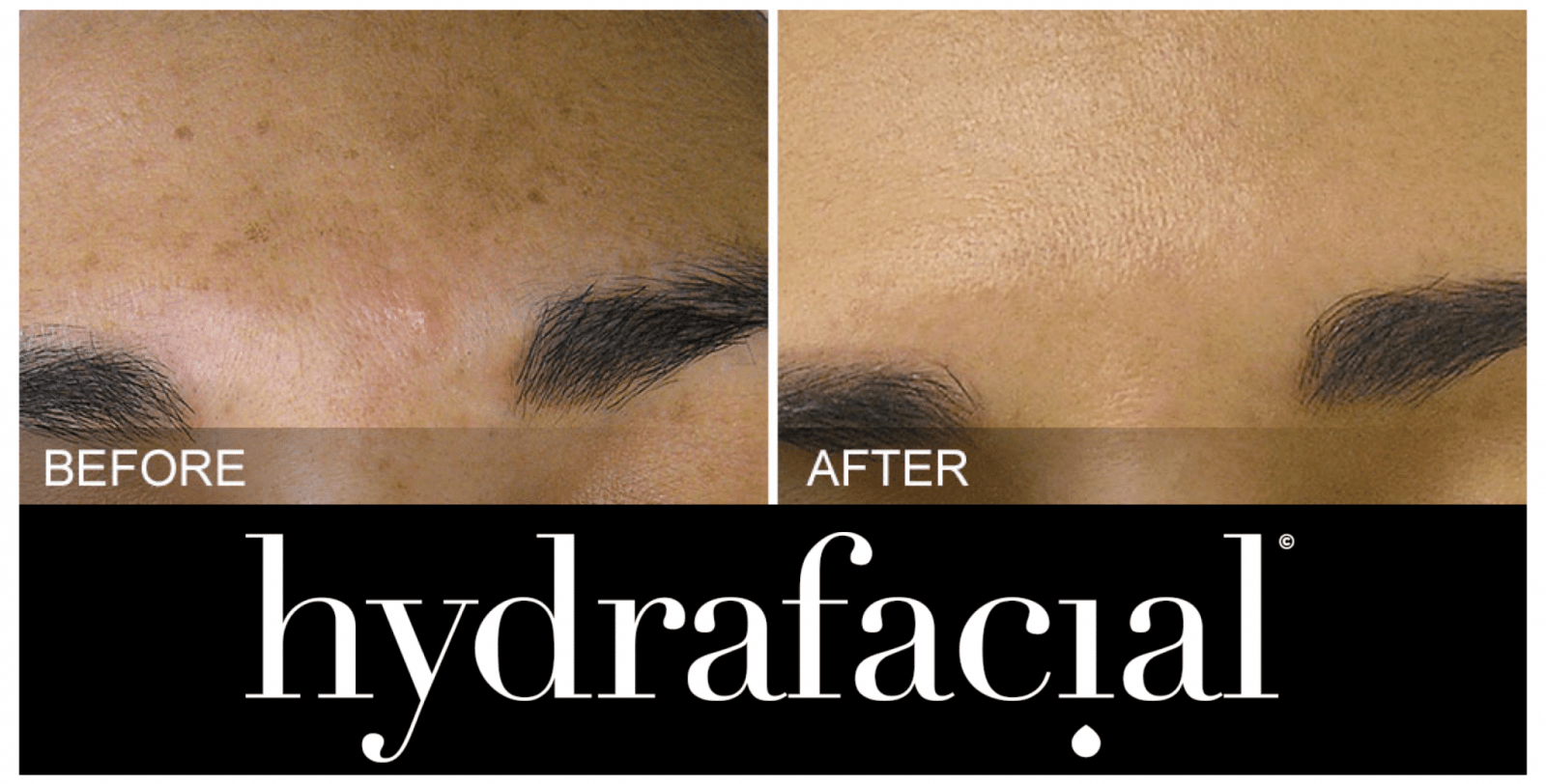 HydraFacial before and after