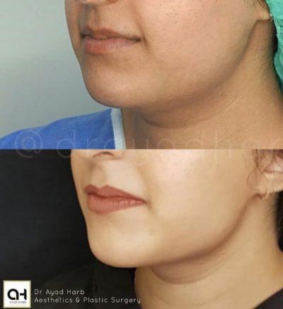 Facetite surgery facelift london